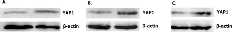 Overexpressed hsa-miR-138-2-3p down-regulated expression of YAP1. The expression of YAP1 in 100nM-TR of Hep-2 (A), M2e (B) and TU212 (C) CSCs were reduced more than that in 100nMN-CR.