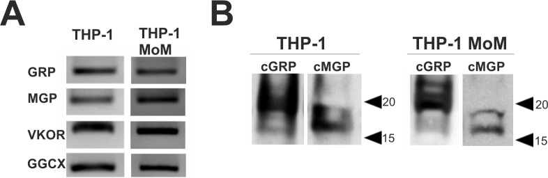 γ-carboxylated GRP and MGP are produced in THP-1 cell line. THP-1 and THP-1 MoM differentiated with 25 ng/ml of PMA during 48h were cultured in control conditions and harvested for RNA and protein extraction. (A) Qualitative gene expression analysis of GRP, MGP, VKOR and GGCX by RT-PCR in undifferentiated THP-1 representing monocyte cells (THP-1), and in differentiated THP-1 representing macrophages (THP-1 MoM). (B) Western blot analysis of thirty μg of total RIPA protein extracts of THP-1 and THP-1 MoM cells using the conformation-specific antibodies recognizing γ-carboxylated GRP (cGRP) and MGP (cMGP). Position of relevant molecular mass markers (kDa) is indicated on the right side.