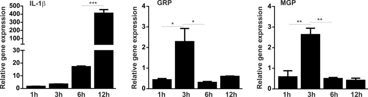 GRP and MGP are up-regulated in hydroxyapatite stimulated THP-1 MoM cells. Differentiated THP-1 macrophage cells were stimulated with 250 μg/ml of synthetic hydroxyapatite nano-crystals and harvested for RNA extraction at determined time points during 12h. Relative gene expression analysis of the inflammatory marker IL-1β, GRP and MGP was determined by qPCR at indicated time points. Gene expression levels are relative to the expression of control untreated cells during each time point. GAPDH was used as housekeeping gene and data is presented as means (n = 3) ± standard error of duplicates of two independent experiments. Ordinary one-way ANOVA was used and multiple comparisons were achieved with Tukey's test. Statistical significance was defined as P