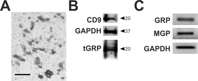GRP is present in THP-1 MoM extracellular vesicles (EVs) at protein and mRNA levels. EVs were isolated from THP-1 MoM cell conditioned media by differential ultracentrifugation at 100.000 xg and characterized by TEM (A), Western blot for the exosomal marker CD9, GAPDH and total GRP (tGRP) (B), and qualitative analysis of GRP, MGP and GAPDH mRNA (C). Scale bar in panel (a) represents 200 nm.