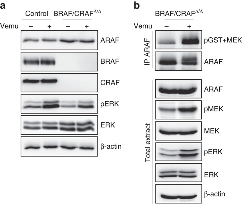 Vemurafenib induces ERK paradoxical activation in BRAF- and CRAF-decifient NRAS-induced melanoma by increasing ARAF kinase activity. ( a ) Western blot analysis of ERK activation (pERK) and ARAF, BRAF and CRAF protein expression in parental control and BRAF/CRAF Δ/Δ cultures after treatment with 1 μM Vemurafenib (Vemu) or DMSO during 1 h. Total ERK and β-actin are used as loading controls. ( b ) ARAF in vitro kinase assays in BRAF/CRAF Δ/Δ cultures after treatment with 1 μM Vemurafenib or DMSO during 1 h. ARAF was immunoprecipitated and its intrinsic kinase activity was measured on kinase-inactive MEK as substrate by western blotting using anti-pMEK antibody. Immune complexes and total cell extracts were immunoblotted with anti-ARAF, pMEK, MEK, pERK and ERK antibodies. β-actin was used as a loading control.