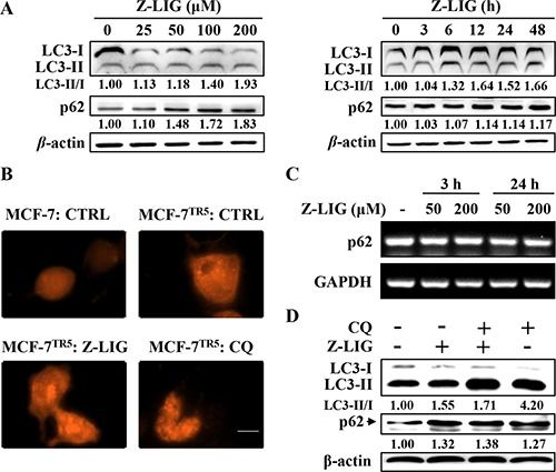 Z-LIG functions as autophagy inhibitor in MCF-7TR5 cells ( A ) Effect of Z-LIG on conversion of LC3II and p62 expression. MCF-7 TR5 cells were treated with Z-LIG with indicated concentrations for 24 h (left panel) or treated with Z-LIG (50 μM) for indicated time points (right panel). Then, the expression of LC3II/I and p62 was analyzed by Western blotting. ( B ) Effect of Z-LIG on RFP-LC3 punctation. Cells were transfected with RFP-LC3 for 6 h, and then MCF-7 TR5 cells were treated with Z-LIG (50 μM) and CQ (20 μM) for 24 h. A punctate distribution of LC3 was observed by confocal microscopy (40×). Scale bars: 10 μm. ( C ) Effect of Z-LIG on p62 mRNA expression. MCF-7 cells were treated with Z-LIG as indicated for 3 or 24 h, then expression of p62 mRNA was determined by RT-PCR. ( D ) Effect of combinatorial Z-LIG and CQ on conversion of LC3II and p62 expression. Cells were treated with CQ (20 μM) or Z-LIG (50 μM) or their combination for 24 h. And then the expression of LC3II/I and p62 was analyzed by Western blotting. The blots were a representative of three independent experiments.