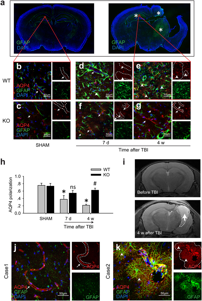 Loss of AQP4 polarity after brain injury in a mouse model of TBI and patients' brains. ( a ) In the mouse TBI model, compared with the SHAM group, reactive astrogliosis (asterisk) was still obvious 4 weeks after the injury. AQP4 immunoreactivity was confined to the perivascular end feet (arrows) in the contralateral hippocampal CA1 region of the SHAM WT mice ( b ) and the SHAM A 2A R KO mice ( c ). A large proportion of AQP4 shifted to the soma and coarse processes of the GFAP-positive reactive astrocytes 7 d ( d ) and 4 weeks ( e ) after TBI. AQP4 dysregulation was alleviated by A 2A R KO ( f,g ). The arrows indicate the relative normal AQP4 distribution, and the arrowheads indicate AQP4 dysregulation. Scale bar: 50 μm. ( h ) Quantification of AQP4 polarity in the SHAM group and 7 d and 4 weeks post-TBI group. n = 4 per group. Data represent mean ± s.e.m., * p