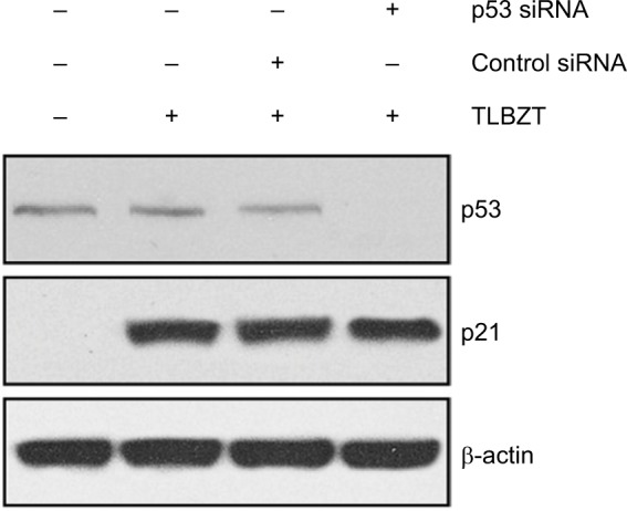 Role of p53 in TLBZT-induced p21 expression. Notes: After 24 h of transfection with p53 siRNA or control siRNA, LS174T cells were treated with 200 μg/mL of TLBZT for 5 days and subjected to Western blot probing p53 and p21; β-actin was used as a loading control. Abbreviations: siRNA, small interfering RNA; TLBZT, Teng-Long-Bu-Zhong-Tang.