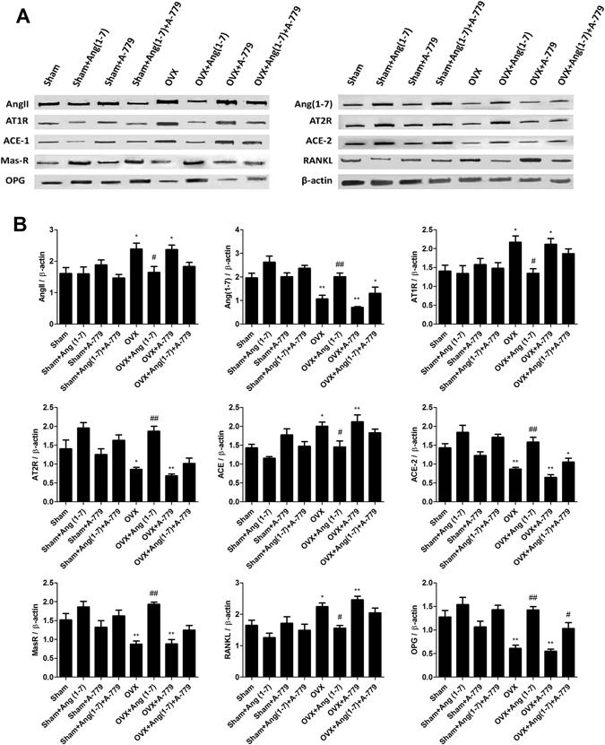 Effects of Ang(1-7) and/or A-779 treatments to the sham and OVX animals for 6 weeks on the expressions of RAS different proteins and osteoclastogenesis modulating factors in the femoral bone heads. ( A ) Western blot analysis bands showing the expressions of AngII, Ang(1-7), AT1R, AT2R, ACE, ACE-2, MasR, RANKL and OPG. ( B ) Quantification of the scanning densitometry of the western blot bands (n = 8/group) expressed as arbitrary units. One-way ANOVA test followed by post hoc Student-Newman-Keuls multiple comparisons test were used for the statistical analysis. Columns and bars represent the mean ± SEM of each group. Statistical significance was considered when *P