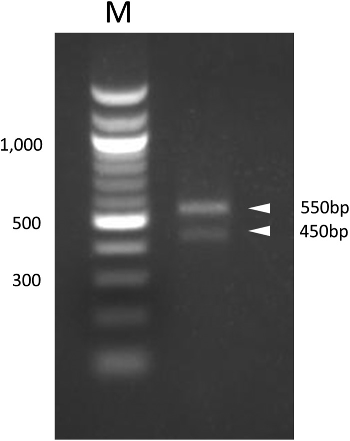 RT-PCR amplification of canine CTLA-4 mRNA. Bands corresponding to 450 and 550 bp were observed. M; 100 bp DNA maker.