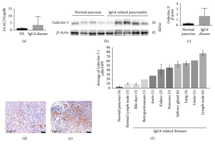 Validation of galectin-3 expression in patients' tissues . (a) LGALS-3 expression was higher in IgG4-related pancreatitis patients compared to controls. Data are presented as the mean relative expression ratio between the mRNA levels of the LGALS3 gene and the expression of GAPDH . Error bars, standard error of the mean (SEM). (b) Immunoblot analysis showing higher galectin-3 protein levels in IgG4-related pancreatitis samples ( n = 5) compared with those in the normal pancreas samples ( n = 4). (c) Quantification of the immunoblot presented in panel (b). Mean band intensity ratio was measured as intensity of galectin-3 band divided by the intensity of the corresponding beta actin band. Bar graphs represent mean values. Error bars, SEM. (d, e) Immunolocalization of galectin-3 in IgG4-RD samples ((d) pancreas; (e) submandibular gland). Note that lymphoid cells in (d) were negative for galectin-3. Scale bar, 20 μ m. (f) Average galectin-3 positive cells in the stroma in different organs in IgG4-RD patients. Positive cells were counted in 3HPF. Numbers in parentheses represent the number of cases. Bar graphs represent mean values. Error bars, SEM.