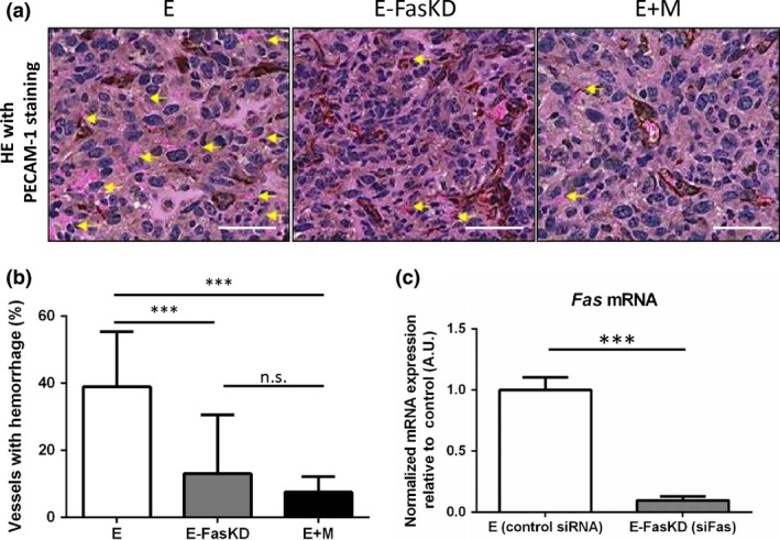 si RNA ‐mediated knockdown of endothelial Fas recapitulated the reduction in hemorrhage seen in the presence of 10T1/2 cells in vivo . (a) Representative HE stain images of the E, E‐Fas KD , and E+M condition xenografts. The slides were also stained for PECAM ‐1 (brown). Yellow arrows indicate hemorrhagic vessels identified by extravasated red blood cells ( RBC s). Scale bars = 50 μm. (b) Quantification of hemorrhagic vessels as seen in (a). The addition of 10T1/2 cells markedly reduced hemorrhage compared to MS ‐1 cells alone. The knockdown of Fas in MS ‐1 cells recapitulated the reduction of hemorrhage to levels comparable to that seen in the E+M xenografts. (c) Fas expression in MS ‐1 cells was quantified by qRT ‐ PCR to confirm successful knockdown by si RNA . Data represented as mean ± SD in all graphs. *** P