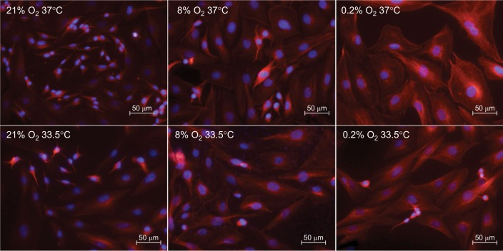 Cell morphology after 24 hours of atmospheric normoxia, subatmospheric oxygen tension, or hypoxia (21%, 8%, or 0.2% O 2 ) followed by 72 hours of normothermia (37°C) or hypothermia (33.5°C). SK-N-SH cells are stained with anti-beta III-Tubulin (red) and DAPI (blue). Abbreviation: DAPI, 4′,6-diamidin-2-phenylindol.
