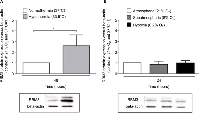 Western blots and densitometric quantification of RBM3 protein versus beta-actin in SK-N-SH after ( A ) 48 hours of normothermia (37°C) versus hypothermia (33.5°C) and after ( B ) 24 hours of 0.2% or 8% O 2 tension compared to 24 hours of atmospheric normoxia (n=4–8, * p