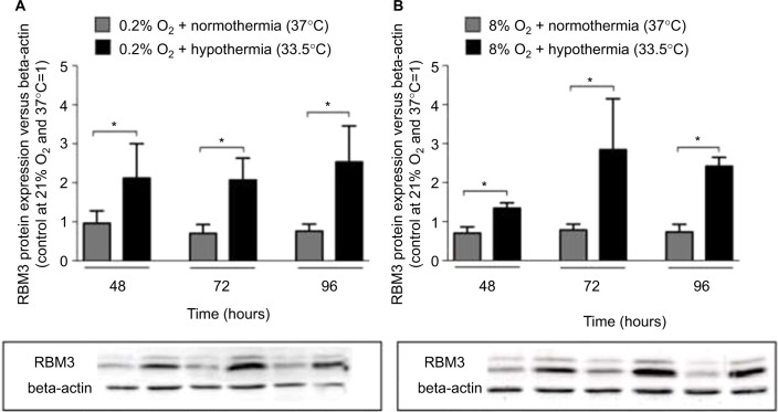 Western blots and densitometric quantification of RBM3 protein versus beta-actin in SK-N-SH cells after ( A ) 24 hours of hypoxia (0.2% O 2 ) or ( B ) 24 hours of subatmospheric oxygen tension (8% O 2 ) followed by 24, 48, or 72 hours of normothermia/hypothermia (total 48, 72 and 96 hours, n=4, * p