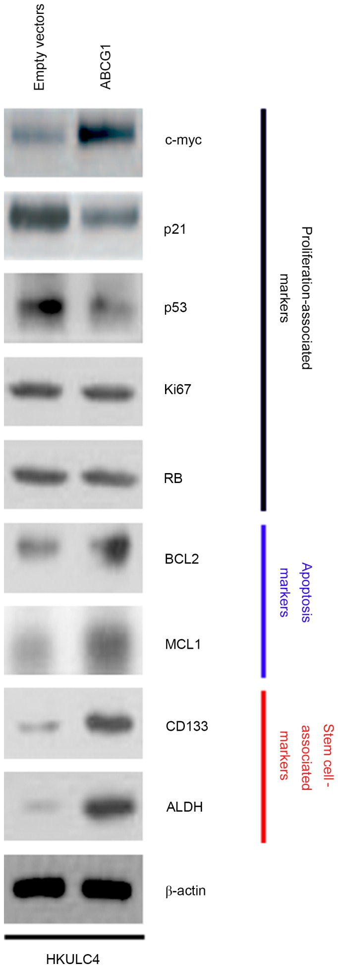 ABCG1 regulates proliferation-, apoptosis- and cancer stem cell-associated markers in HKULC4 lung cancer cells. Western blot for c-Myc, p21, p53, Ki67, RB, BCL2, MCL1, <t>CD133</t> and ALDH1 in HKULC4 cells transfected with ABCG1-expressing plasmid or empty vector. β-actin was used as a loading control (representative images of three experiments are shown). ABCG1, ATP-binding cassette transporter G1; BCL2, B-cell lymphoma 2; MCL1, myeloid cell leukemia 1; ALDH, aldehyde dehydrogenase; RB, retinoblastoma protein.