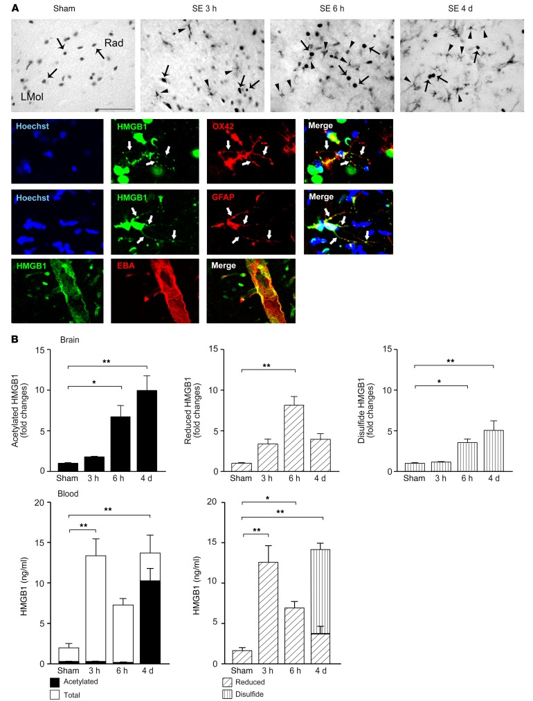 Brain and blood HMGB1 measurements during epileptogenesis evoked by electrical SE in adult rats. ( A ) Representative photomicrographs of hippocampi from control rats (sham) or rats at 3 hours, 6 hours, and 4 days after SE ( n = 5 each group). Top row shows HMGB1 immunoreactivity in cell nuclei (arrows) or in cytoplasm of glial cells (arrowheads). Immunofluorescence panels show localization of HMGB1 signal (green) in OX-42–positive microglia (red), GFAP-positive astrocytes (red), and EBA-positive endothelial cells (red); colocalization signal is depicted in yellow (merge). White arrows depict cytoplasmic staining. Hoechst-positive nuclei are shown in blue. Rad, stratum radiatum; LMol, stratum lacunosum moleculare. Scale bars: 25 μm (top row); 20 μm (bottom row; immunofluorescence panels). ( B ) Levels of HMGB1 isoforms in brain tissue (hippocampus) and corresponding blood of rats during epileptogenesis. Data are shown as mean ± SEM ( n = 5 each group). Dot plots are shown in Supplemental Figure 4 . * P