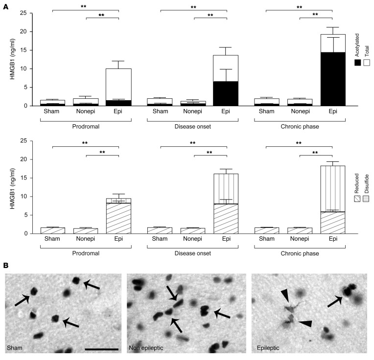 Early prediction of epilepsy development by monitoring blood HMGB1 level in lithium+pilocarpine SE rats. ( A ) Longitudinal analysis of total HMGB1 and acetylated, reduced, and disulfide isoform levels in blood at representative time points of disease development (see key in A ). Blood was drawn at 23 days (epileptogenic phase prodromal to epilepsy onset), 73 days (encompassing the time of disease onset in 70% of rats), and 7.5 months (chronic epilepsy). Data represent mean ± SEM; n = 7 sham; n = 5 epileptic (Epi); n = 5 nonepileptic (Nonepi) rats. Dot plots are shown in Supplemental Figure 10 . ** P