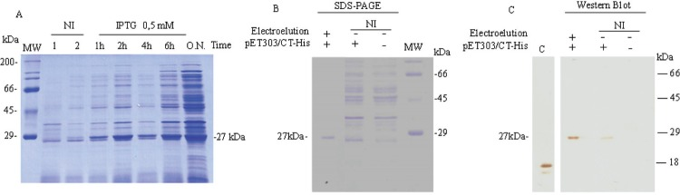 : expression, purification, and detection of the recombinant argenine transcriptional regulator arginine catabolism mobile element (rArcRACME) protein. (A) The amount of the rArcRACME protein in the insoluble fraction of a total protein extract from <t>Escherichia</t> coli <t>BL21-arcR,</t> induced with 0.5 mM isopropyl β-D-1-thiogalactopyranoside (IPTG) at 37ºC at different time points. Lane 1, E. coli BL21 (DE3) without recombinant plasmid pET303/CT-His. Lane 2, E. coli BL21 (DE3) with recombinant plasmid pET303/CT-His, not induced. rArcRACME (~27 kDa) was purified from overnight (O.N.) culture of E. coli BL21-arcR by electroelution and visualised by SDS-PAGE (B) and western blotting (C) using an anti-6x-His antibody. Lane C in the western blot is a positive control for the anti-His antibody. NI: not induced.