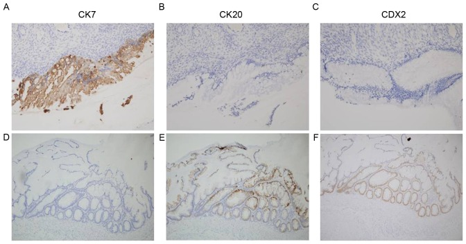 Immunohistochemical staining of the appendiceal and ovarian masses. The tumor cells of the right ovarian mass were (A) strongly positive for CK7, and negative for (B) CK20 and (C) CDX2. The tumor cells of the appendiceal mass were (D) negative for CK7 and positive for (E) CK20 and (F) CDX2. CK, cytokeratin; CDX2, homeobox protein CDX-2.