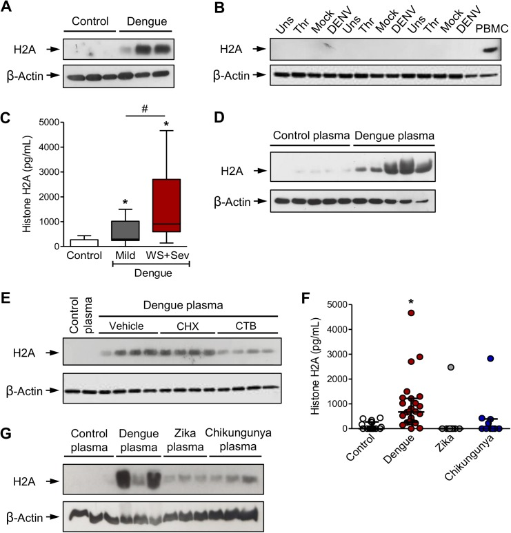 Platelets sequester circulating histone H2A in plasma from dengue-infected patients. ( A-B ) Western blot analysis for histone H2A and β-actin in ( A ) freshly isolated platelets from three healthy volunteers (Control) and three patients with dengue; and in ( B ) platelets from three healthy volunteers that were kept unstimulated (Unst) or stimulated with thrombin (Thr), DENV or Mock for 6h. Human peripheral blood mononuclear cells (PBMC) were used as positive control for histone H2A expression. ( C ) Histone H2A concentration in plasma from control subjects or patients with mild dengue or dengue with warning signs and severe dengue (WS+Sev). Boxes indicate the median and interquartile ranges and whiskers indicate minimal and maximal values in each group. ( D-E ) Platelets were isolated from a healthy volunteer and incubated with 20% plasma from five dengue-infected patients (dengue plasma) or five healthy volunteers (control plasma) for 4 hours in the presence or absence of cyclohexamide (CHX), cytochalasin B (CTB) or DMSO (vehicle). ( F ) Histone H2A concentration in plasma from control subjects or patients with dengue, zika or chikungunya fever. Each dot represents the level of histone H2A in plasma from one patient or control. Lines represent median and interquartile range. ( G ) Western blot analysis for histone H2A and β-actin in platelets incubated with 20% plasma from three control subjects or three patients with dengue, zika or chikungunya. * means p