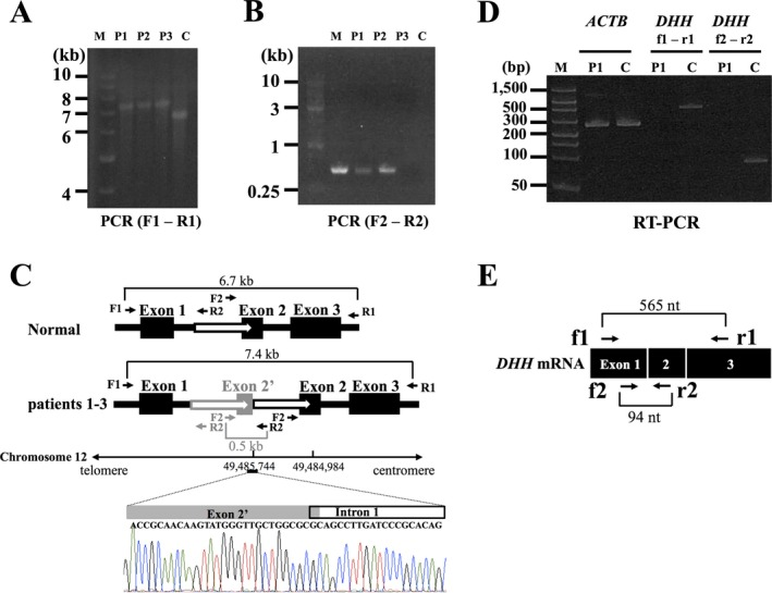 (A) Long‐range PCR amplification of the whole region of DHH in the three MN patients (left). We amplified the entire DHH region including all three exons using the following primer set: F1 (5′‐ GCAGCTTCCAACTGAGAAGTCA ‐3′) and R1 (5′‐ GCTGATATGCCCTTGTTTAGGG ‐3′). DHH is approximately 700 bp longer in the three cases than in the normal control. M, size standard marker (1 kb DNA ladder); C, normal control; P1, patient 1; P2, patient 2; P3, patient 3. (B): Detection of breakpoint junction by PCR . We performed genomic PCR using the following primer set: F2 (5′‐ CTACCATCGACTCAGATTCT ‐3′) and R2 (5′‐ GCTCCCCTCCCTCCGCCTGA ‐3′). M, size standard marker (1 kb DNA ladder); C, normal control; P1, patient 1; P2, patient 2; P3, patient 3. Only the patients' genomic DNA s carrying the duplication can be PCR amplified. (C) Structure of mutation in DHH . Direct nucleotide sequence analysis of the PCR products amplified using a primer set (F2 and R2) showed the breakpoint junctions. One of them was found in exon 2 and the other in intron 1 (chromosome 12: 49,484,984‐49,485,744). The black boxes represent exons and the white arrows duplicated regions. (D) RT ‐ PCR analysis of DHH mRNA expression in the sural nerves. In the RT ‐ PCR analyses of DHH using primers located on exons 1 and 3 (f1 and r1 in Fig 2 E) and primers located on exons 1 and 2 (f2 and r2 in Fig 2 E), the PCR products (565 bp and 94 bp bands) were revealed only in a control subject, confirming the absence of DHH mRNA expression in the sural nerve of the patient 1. RT ‐ PCR of ACTB revealed bands corresponding to 285 bp in both the patient 1 and a control subject. M, size standard marker (FlashGel DNA marker); C, normal control; P1, patient 1; ACTB , actin beta. (E) A schematic presentation of normal DHH mRNA along with primers used in the RT ‐ PCR analysis.
