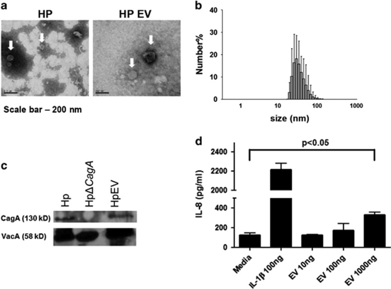 Characterization of purified H. pylori -derived extracellular vesicles (EVs) and induction of IL-8 with EVs in vitro . ( a ) Transmission electron microscopy (TEM) images. ( b ) Size distribution of EVs determined using dynamic light scattering (DLS). ( c ) Confirmation of CagA and VacA in cell extracts and EVs by western blotting. Hp, HpΔ CagA and HpEV denote cell extracts from wild-type H. pylori strain HP99 (Hp), isogenic H. pylori with CagA gene deletion (HpΔ CagA ), and EVs from H. pylori strain HP99 (EV), respectively. ( d ) Induction of IL-8 in human gastric adenocarcinoma cell line AGS by IL-1β (positive control) and EVs (* P