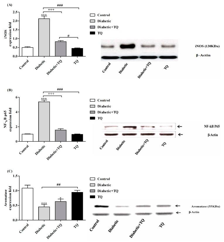 Western blotting analysis of iNOS ( A ), NF-κB-p65 ( B ), and Aromatase ( C ) in Control, Diabetic, Diabetic + TQ, and TQ groups. * p