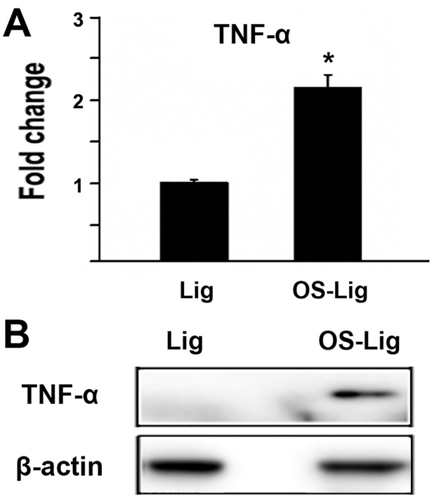 The level of <t>TNF-α</t> protein increased in TOLF. A) Fold change of TNF-α protein in the ossified ligamentum flavum of TOLF. Proteins were extracted from the ossified ligamentum flavum (OS-Lig) and normal ligamentum flavum (Lig). The samples were then labeled with iTRAQ following the manufacture's protocol. *: A star indicates statistical significance compared to control group with p