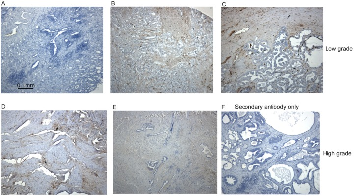 Fascin-1 staining patterns in human prostate carcinomas. Examples of fascin-1 staining in conventional sections of prostate carcinomas. (A) Uninvolved tissue; (B, C), low/intermediate grade, Gleason score 7 tumours; (D)-(F), high grade, Gleason score 9 tumours. Focal areas of fascin-1–positive tumour cells are indicated by asterisks in (D). All sections were counter-stained with hematoxylin-eosin.