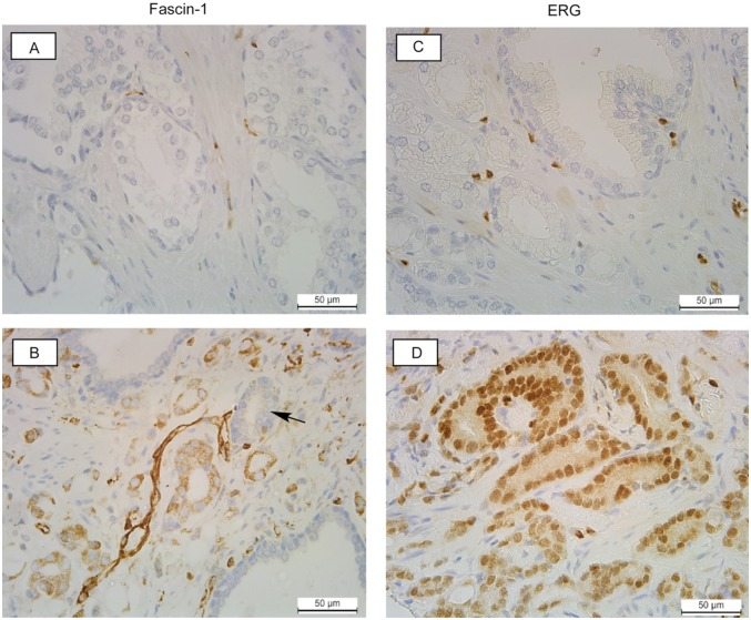 Examples of fascin-1 and ETS-related gene (ERG) staining patterns in human prostate carcinomas from the tissue microarray. (A, B) Staining for fascin-1; (C, D), staining for ERG. (A) and (C) are from Gleason grade 6 tumours with fascin-1 (A) or ERG (C), staining that is indistinguishable from the normal tissue. (B) Example of a Gleason grade 8 tumour with elevated fascin-1 in the stroma and de-differentiated glands. Arrow indicates a predominantly fascin-1–negative gland adjacent to 2 fascin-1–positive glands. (D) Example of a Gleason grade 7 tumour with elevated nuclear ERG in most cells.