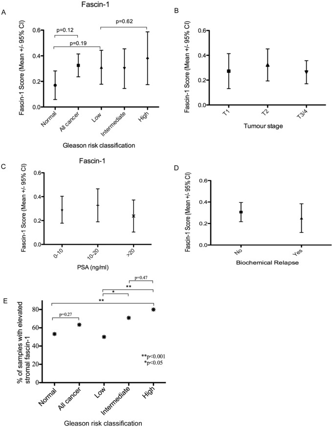 Assessment of fascin-1 status against clinico-pathological characteristics of human prostate carcinomas from the tissue microarray. (A) Relationship between fascin-1 score and Gleason risk classification of the TMA tumour specimens. (B) Relationship between fascin-1 score and tumour stage (stage T1 = 12 tumours, T2 = 93 tumours, T3/4 = 106 tumours). (C) Relationship between fascin-1 score and serum PSA levels of the patients prior to prostate biopsy. Serum PSA was between 0 and 10 ng/mL for 108 patients; between 10 and 20 ng/mL for 61 patients, and > 20 ng/mL for 42 patients. (D) Relationship between fascin-1 score and occurrence of biochemical relapse after surgery. The data set includes 19 samples from 18 patients with biochemical relapse and 160 from patients who did not undergo biochemical relapse. (E) Relationship between elevated stromal fascin-1 (scored as yes or no, see Supplementary Datafile) and Gleason risk classification. Data in (A) to (D) are presented as box and whisker plots, and statistical analyses were carried out by Mann-Whitney U test. CI indicates confidence interval; PSA, prostate-specific antigen; TMA, tissue microarray.