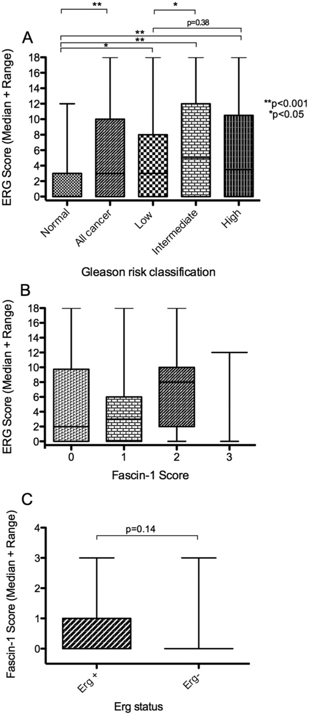 Analysis of fascin-1 in relation to nuclear ERG status in human prostate carcinomas from the tissue microarray. (A) Correlation of increased nuclear ERG score with Gleason risk classification. (B) Relationship between fascin-1 score and ERG score. (C) Relationship between fascin-1 score and ERG-positive or ERG-negative status, where ERG negativity is taken as tumours containing