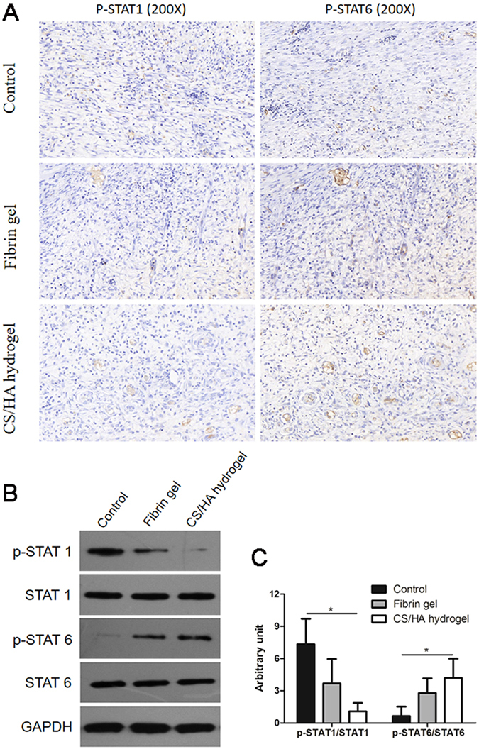 ( A ) Expression of p-STAT1 and p-STAT6 in the regenerative tissue was determined by immunohistochemistry. The amplification was 200× . ( B ) Representative western blot images (cropped) of expression of p-STAT1, STAT1, p-STAT6 and STAT6 in the regenerative tissue. ( C ) Gray intensity of p-STAT1 and p-STAT6 was analyzed. *P
