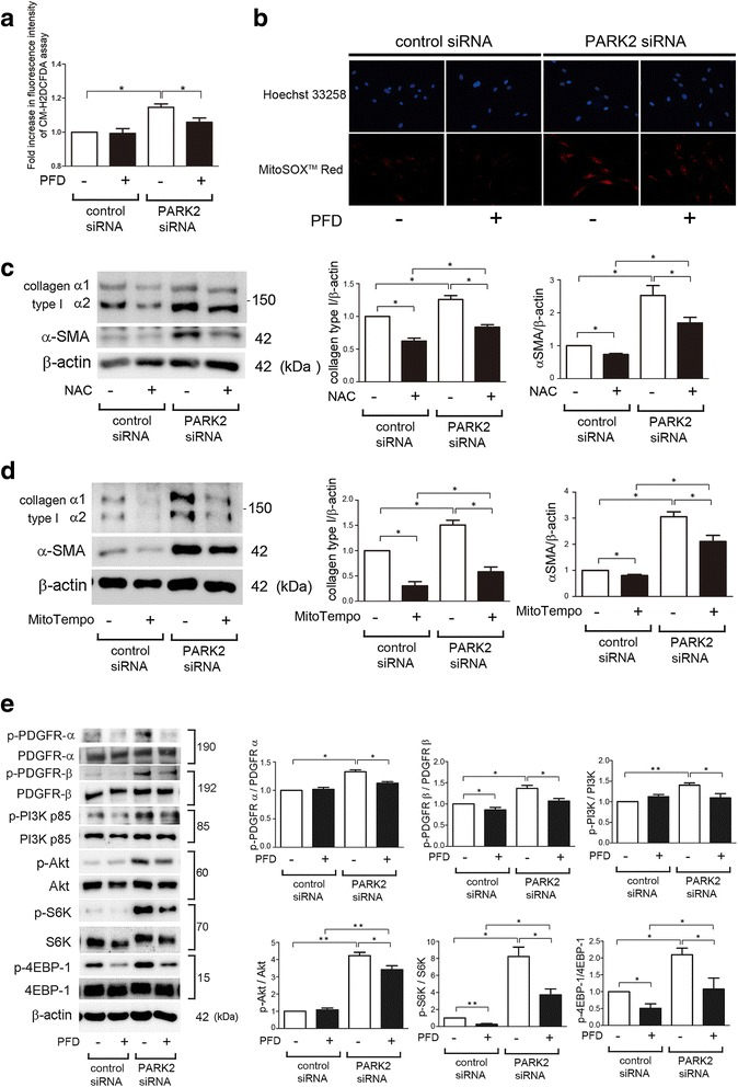 PFD attenuates myofibroblast differentiation during insufficient mitophagy via inhibiting PDGFR/PI3K/AKT signaling pathway in LF. a Fluorescence intensity of CM-H2DCFDA staining for intracellular ROS production. PFD (500 μg/ml) treatment was started 48 h post-siRNA transfection and incubation with CM-H2DCFDA (10 μM) was started after 24 h treatment in LF. The fluorescence level in the control siRNA transfected cells without PFD was designated as 1.0. The panel is the average (±SEM) taken from five independent experiments shown as relative expression.* p