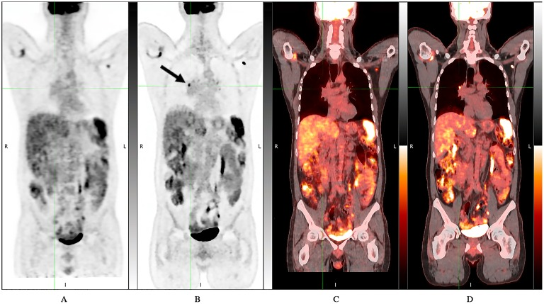 D690 PET/CT vs DMI PET/CT: DMI showed an additional focal avid FDG uptake area (black arrow). 46 years-old man with myocardial sarcoidosis who underwent PET/CT for initial staging. DMI images were acquired 39.1 minutes after standard acquisition and 109.2 minutes after 18 F-FDG injection. A) D690 Maximum-intensity-projection (MIP); B) DMI MIP; C) D690 coronal fused image D) DMI coronal fused image.