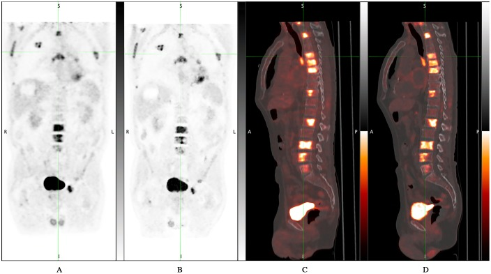 D600 <t>PET/CT</t> vs <t>DMI</t> PET/CT: no additional bone lesions were detected by DMI PET/CT compared to standard PET/CT. 61 years-old man with tonsillar cancer who underwent PET/CT for evaluation of response to therapy. DMI images were acquired 47.4 minutes after standard acquisition and 126 minutes after 18 F-FDG injection. A) D600 MIP; B) DMI MIP; C) D600 sagittal fused image; D) DMI sagittal fused image.