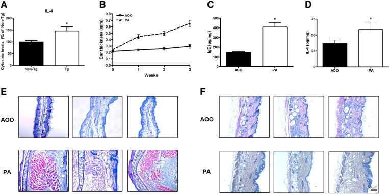 PA-induced allergy reaction. Induction of the allergenic response to PA in IL-4 mice and AOO-treated IL-4 control mice. (A) IL-4 levels in the serum of Luc/IL-4/CNS-1 transgenic mice and nontransgenic (Non-Tg) mice. The concentration of IL-4 in the Non-Tg mice was 20.34 pg/mg. Changes in various immune-related factors such as ear thickness (B), IgE concentration (C), IL-4 concentration (D), and increases in epidermal thickness in the ear tissue (E) and skin tissue of the dorsal region (F) were detected. * ( P