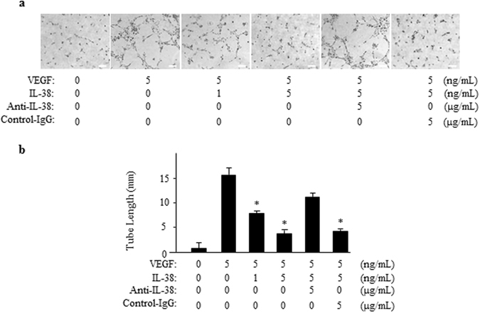 IL-38 reduces endothelial cell tube formation. ( a ) 40,000 HRECs/well were seeded on Matrigel containing VEGF/IL-38/anti-IL-38/IgG in depleted medium. The cells were cultured for 18 h at 37 °C 5% CO 2 . Tube formation was quantified by counting the tube-like structures in the gel and data were presented as the number of branches per field. Scale bar, 200 μm. ( b ) Total length of tubule structure were quantified. * P
