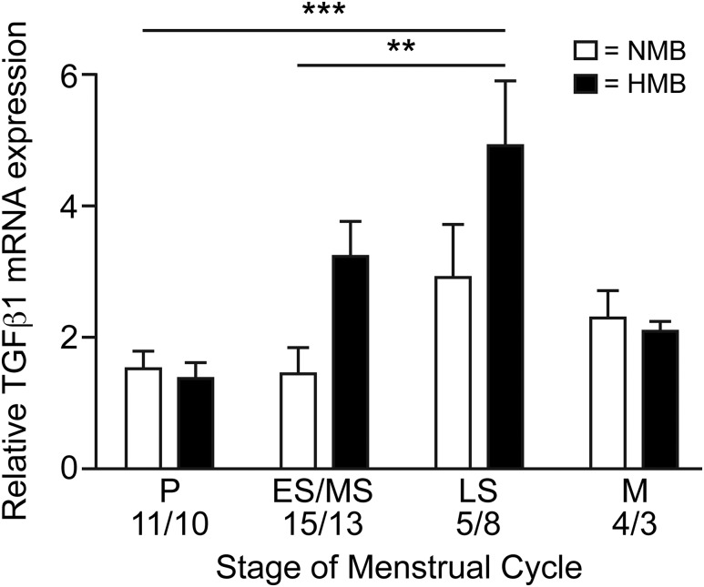 TGFβ1 in the human endometrium. <t>TGF-</t> <t>β</t> 1 mRNA concentrations in endometrium from across the menstrual cycle in women with HMB (blood loss > 80 mL) and NMB (blood loss