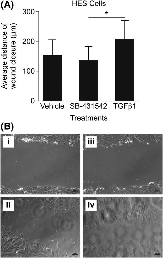 The effect of TGF- β 1 on human endometrial cell wound repair. (A) Average wound scratch closure distance (scratch distance at 0 hours minus scratch distance at 24 hours) in human primary stromal endometrial cells after treatment with vehicle, the Alk receptor inhibitor SB-431542, or 1 ng TGF- β 1. (B) Images of wound scratch in HES cells treated with 10 μg/mL SB-431542 for the following: (i) 0 hours; (ii) 24 hours and treated with 1 ng TGF- β 1; (iii) 0 hours; and (iv) 24 hours. * P