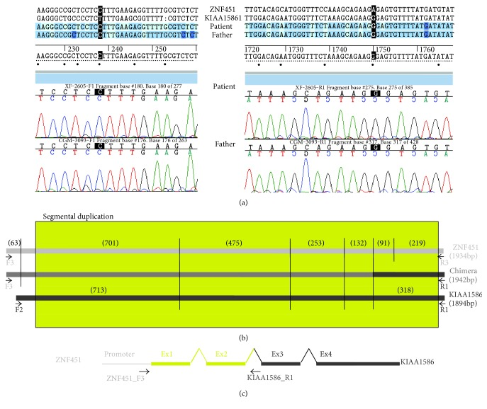 (a) Sequences from both ends of the ZNF451-KIAA1586 chimera. (b) Digestion pattern of PCR amplicons of ZNF451, KIAA1586 and the chimera with RsaI and PstI. The size of each fragment is showed in brackets, the yellow box represents the segmental duplication, and PCR's primers are indicated as black arrows. (c) Schematic representation of chimeric gene according to these results.