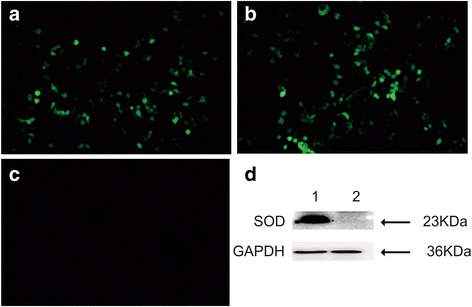 Identification of TgSOD expression in vitro by fluorescence microscopic detection and Western blotting. Fluorescence microscopy images of TgSOD protein in ( a ) HEK 293 T cells that were transfected with pEGFP-SOD and ( b ) empty plasmid pEGFP-C1, and ( c ) non-transfected HEK 293 T cells; ( d ) Western blotting of pEGFP-SOD expressed in HEK 293 T cells (lane 1) probed with anti-STAg mouse sera as primary antibody and the protein of SOD is 23 KDa, whereas no band in the negative control cells with the empty plasmid pEGFP-C1 (lane 2) and GAPDH serves as a loading control