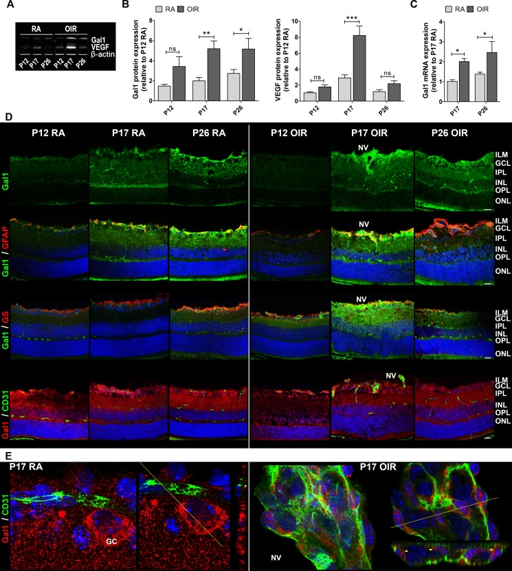 Gal1 expression and localization in RA and OIR mouse retinas A . Representative Western blot of Gal1 and VEGF from neural retina extracts of RA and OIR mice at P12, P17 and P26. β-actin is shown as a loading control. B . Levels of Gal1 and VEGF were quantified by densitometry and normalized by β-actin. Results of at least four independent experiments are shown. C . Gal1 mRNA was quantified by qRT-PCR in neurosensory retinas of P17 and P26 OIR mice or RA (control) conditions. Results were normalized to β-actin and expressed according to the 2 −ΔΔCt method using as calibrator the mRNA level obtained from P17 RA mouse retinas. Data are presented as mean ± SEM. ns, non-significant, * p