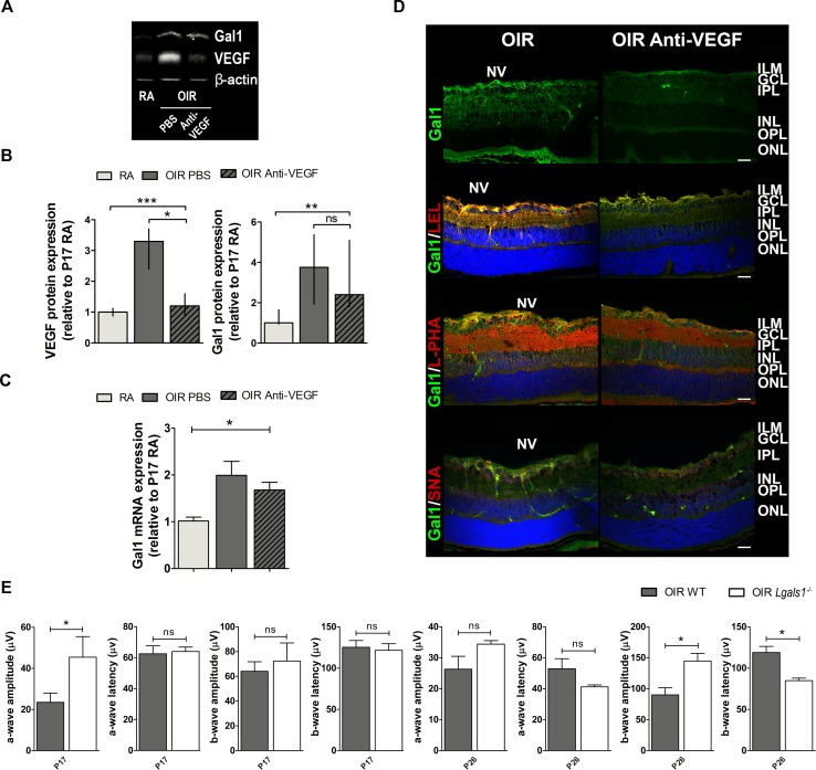 <t>Gal1</t> expression and function as well as the glycophenotype of mouse OIR retinas after <t>anti-VEGF</t> therapy A . Representative Western blot of Gal1 and VEGF from P17 neural retinal extracts of RA and OIR mice injected or not with anti-VEGF mAb. β-actin is shown as a loading control. B . Levels of Gal1 and VEGF were quantified by densitometry and normalized to β-actin. Graph shows results of three independent experiments. C . Gal1 mRNA levels were quantified by qRT-PCR in neurosensory retinas of P17 OIR mice, injected or not with anti-VEGF mAb, and RA (control) conditions. Results were normalized to β-actin and expressed according to the 2 −ΔΔCt method using as calibrator the mRNA level obtained from P17 RA mouse retinas. Data are presented as mean ± SEM or as median and interquartile range according to parametric or not parametric test used for analysis. ns, non-significant, * p