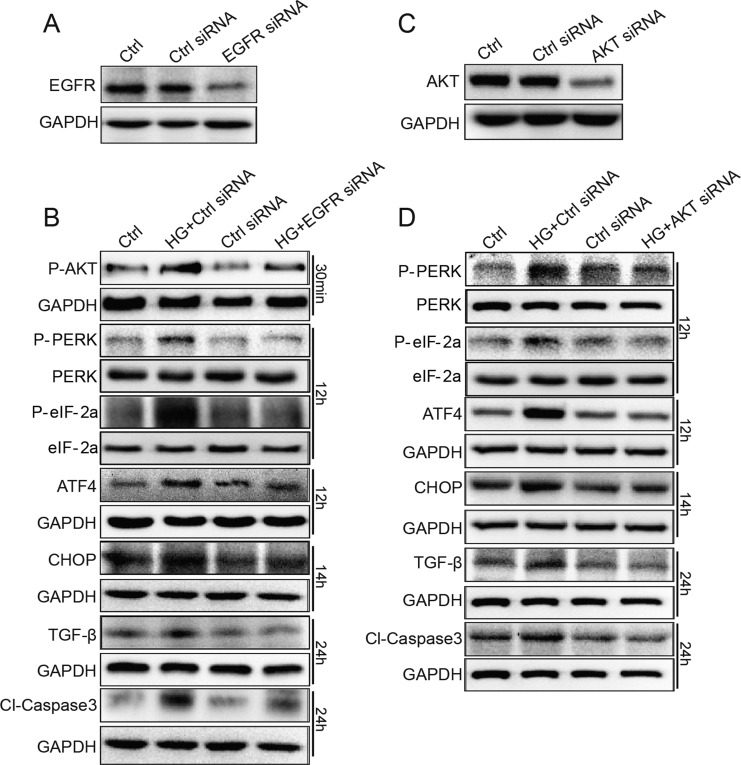 EGFR and AKT mediate HG-induced ER stress and cell damage in SV40 MES 13 cells ( A ) SV40 cells were transfected with EGFR siRNA or control siRNA for 48 h, the expression of EGFR was detected by Western blot analysis. ( B ) EGFR silencing by siRNA reduced HG-induced ER stress, fibrosis and apoptosis. ( C ) SV40 cells were transfected with AKT siRNA or control siRNA for 48 h, the expression of AKT was detected by Western blot analysis. ( D ) AKT silencing by siRNA reduced HG-induced ER stress, fibrosis and apoptosis. Data were obtained from three independent experiments.