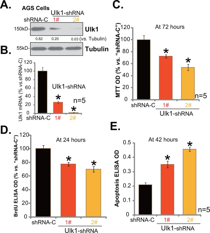 "Ulk1 shRNA knockdown inhibits gastric cancer cell survival Expressions of Ulk1 protein (A) and Ulk1 mRNA (B) in AGS cells with lentiviral Ulk1 shRNA (""1#"" or ""2#"") or scramble control shRNA (""shRNA-C"") were shown. Above cells were also subjected to MTT assay (C) , <t>BrdU</t> <t>ELISA</t> assay (D) and Histone DNA ELISA assay (E) to test cell survival, proliferation and apoptosis, respectively. For these assays, exact same number of viable cells with listed shRNA was plated initially (At 0 hour). * p"