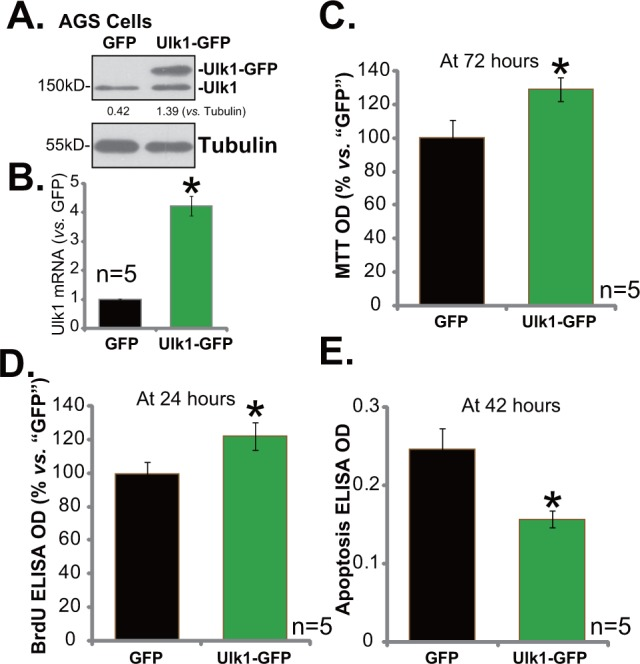 "Exogenous over-expression of Ulk1 promotes gastric cancer cell survival Expressions of Ulk1 protein (A) and Ulk1 mRNA (B) in AGS cells with exogenous Ulk1 (GFP-tagged) or empty vector (pSuper-puro-GFP, ""GFP"") were shown. Above cells were also subjected to MTT assay (C) , BrdU ELISA assay (D) and Histone DNA ELISA assay (E) to test cell survival, proliferation and apoptosis, respectively. For the assays, exact same number of viable cells with Ulk1-GFP or empty vector was plated initially (At 0 hour). * p"