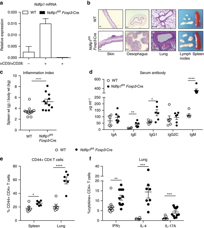 Mice lacking Ndfip1 in their T reg cells develop inflammatory disease. ( a ) Ndfip1 expression assessed by qPCR before (−) or after (+) αCD3/CD28 or PMA/ionomycin (P/I) stimulation of sorted YFP + T reg cells from WT and Ndfip1 fl/fl Foxp3- Cre mice. A representative example of Ndfip1 expression relative to Actb after αCD3/CD28 stimulation is shown. ( b ) Representative Haematoxylin and Eosin-stained histological sections of the skin, oesophagus and lung from genotypes as indicated are shown. Scale bars represent 100 μM. Far right image in panel is a representative image of the spleen and lymph nodes to illustrate size. ( c ) Inflammation index, calculated as a spleen weight/body weight for male Ndfip1 +/+ Foxp3- Cre (WT) and Ndfip1 fl/fl Foxp3- Cre (cKO) mice at 9–16 weeks of age. ( d ) Levels of serum antibody isotypes as quantified by ELISA. ( e , f ) T cells from lung homogenates were analysed by flow cytometry for ( e ) the percentages of CD44 + cells among CD4 + cells and ( f ) the percentages of CD4 + cells producing the indicated cytokines after ex vivo (P/I) stimulation. P values determined by Student's t -test, with correction for unequal variances as appropriate. * P