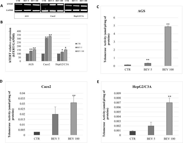 VEGF inhibition with bevacizumab increases hTERT expression and telomerase activity. (A) Semi-quantitative RT-PCR analysis of hTERT expression from AGS, Caco2, and HepG2/C3A cells treated for 48 h with bevacizumab at 5 ng/ml and 100 μ g/ml. GAPDH was used as a loading control. (B) The amount of transcripts referred to in (A) were quantified by real-time PCR with GAPDH as an internal control. (C, D, E) Telomerase activity was detected in AGS (C), Caco2 (D), and HepG2/C3A (E). Results were expressed as the mean ± SD from three experiments.