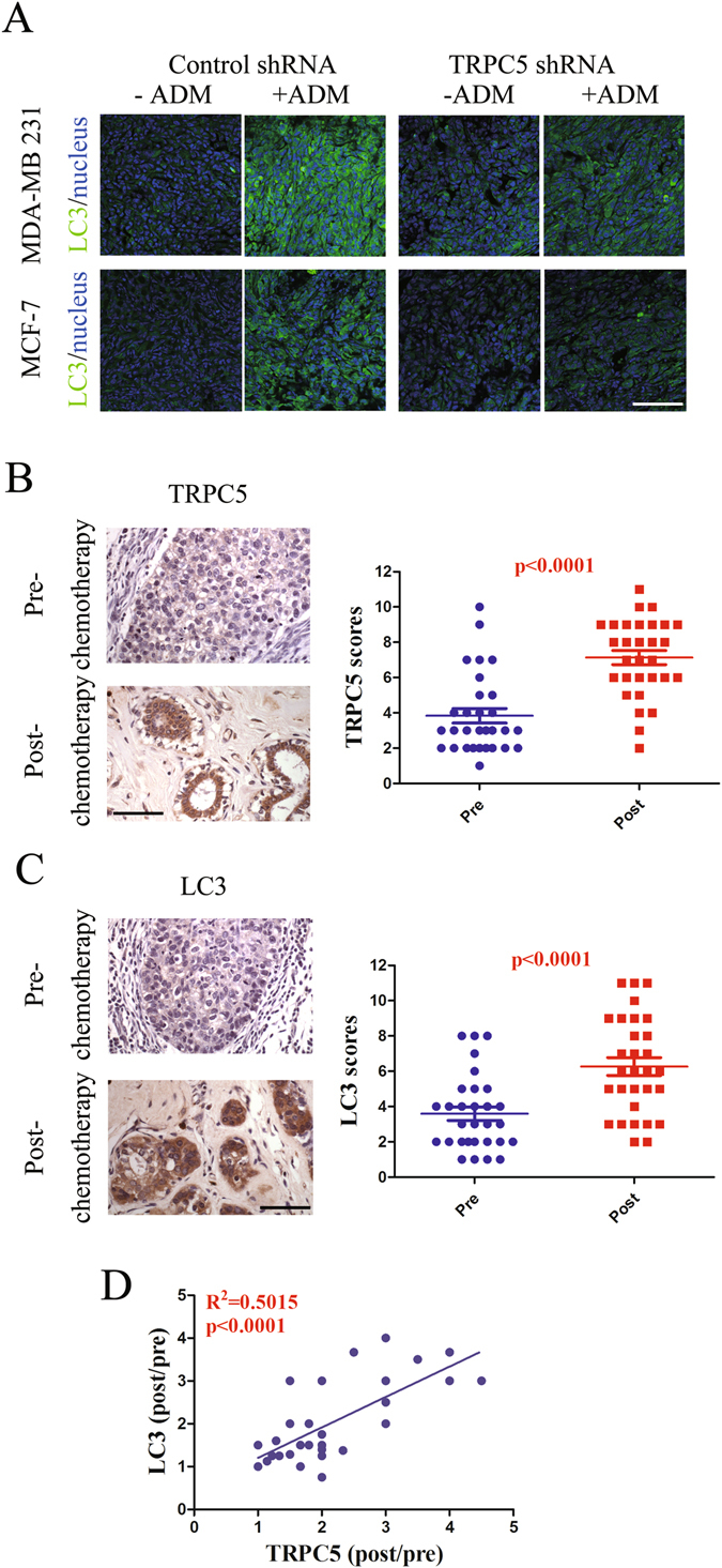 Suppression of autophagy by down-regulated TRPC5 increases sensitivity to ADM in vivo . ( A ) Female nude mice were inoculated with MCF-7 or MDA-MB 231 cells transfected with control or TRPC5 shRNA lentiviral particles and treated with ADM (6 mg/kg) when the tumors reached ~100 mm 3 (n = 5 in each group). Autophagy in tumor samples were assayed by LC3 stain. Scale bar: 100 μm. ( B and C ) Representative images and summary data from immunohistochemical staining of TRPC5 and LC3 in paired pre- and post-chemotherapy breast cancer tissue from patients showing elevated TRPC5 or LC3 expression (n = 31). Scale bar: 100 μm. ( D ) Pearson correction of TRPC5 expression with LC3 (n = 31). Data were analyzed using Pearson correlation test. Values are mean ± SEM *p