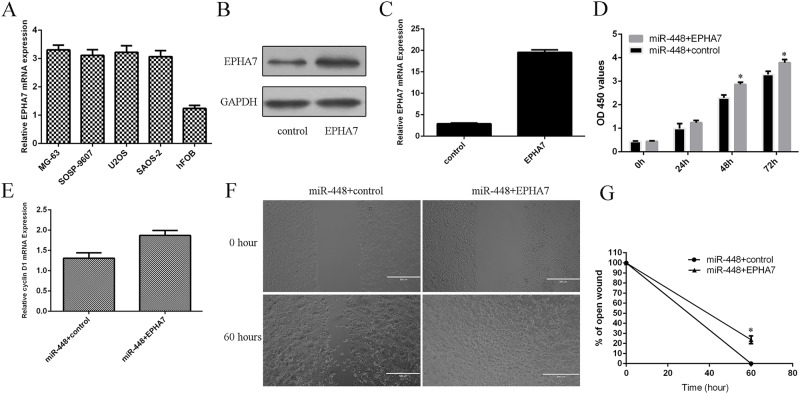 Elevated expression of miR-448 suppressedosteosarcoma cell proliferation and invasion by targeting EPHA7. (A) The expression level of EPHA7 in the osteosarcoma cell lines (U2OS, MG-63, SAOS-2 and SOSP-9607)and osteoblast cell line (hFOB) was measured by qRT-PCR. (B) The EPHA7 mRNA expression was significantly upregulated in the MG-63 cells after treatment with EPHA7 vector. (C) The protein expression of EPHA7 was determined by Western blot. (D) CCK8 assay results demonstrated that EPHA7 overexpression restored miR-448 overexpression MG-63 cell proliferation. (E) Overexpression of EPHA7 promoted cyclin D1 expression in the miR-448 overexpressing MG-63 cells. (F) Overexpression of EPHA7 promoted miR-448 overexpressing MG-63 cell migration. (G) The relative migrative wound was shown. *p
