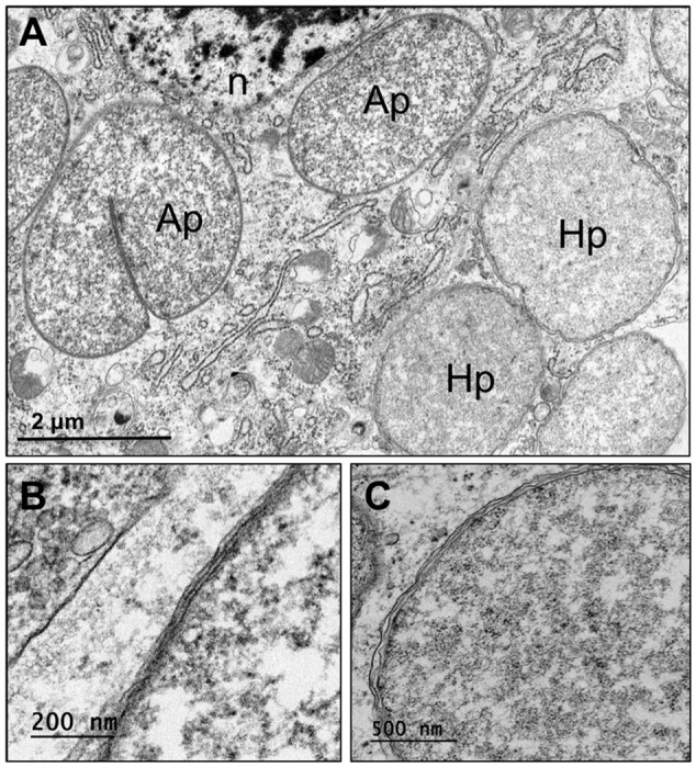 Ultrastructure of Pineus pini endosymbionts residing in bacteriocytes. (A) Ultrathin section of bacteriome in whole-mount insects, showing two distinct bacteriocytes containing ' Ca . Annandia pinicola' (left) and ' Ca . Hartigia pinicola' (right). (B) High magnification of ' Ca . Annandia pinicola' cell envelope, comprising three membrane layers, presumably corresponding to inner and outer membranes and a symbiosome membrane. (C) High magnification of ' Ca . Hartigia pinicola' cell envelope, comprising three membrane layers, presumably corresponding to inner and outer membranes and a symbiosome membrane; no peptidoglycan layer is apparent. Ap, ' Ca . Annandia pinicola'; Hp, ' Ca . Hartigia pinicola'; n, bacteriocyte nucleus.