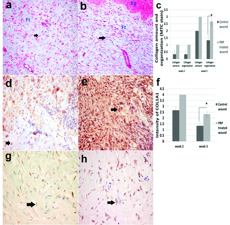 Collagen bundles and collagen IA1 staining in control and PRP treated skin wounds Skin, dog. ( a ) Control wound and ( b ) PRP-treated wound at third week. Fibroblasts indicated by arrows, EP, epidermis; Ft, fibrous tissue (collagen) (Masson's trichrome ×200). ( c ) Lesion score for collagen amount and organization recorded in second and third week. ( d ) Brown coloured collagen IA1 (arrows) in the control wound and ( e ) in the PRP wound at the second week. ( f ) Evaluation of the intensity of collagen IA1 in IHC stained sections at the second and third week. ( g ) Collagen IA1 staining in the control wound and ( h ) in the PRP wound at third week (avidin–biotin–peroxidase complex method, Mayer's haematoxylin counterstain ×400).